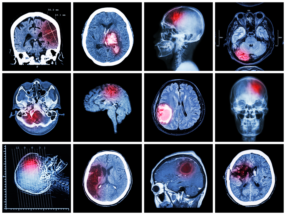 Diagnóstico de Lesión Cerebral luego de un Accidente