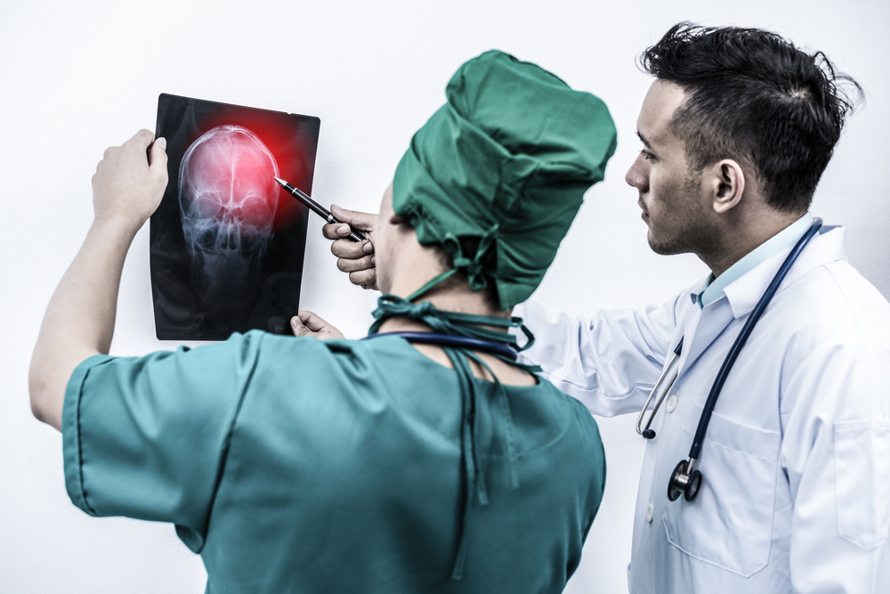 How a Brain Injury Can Affect Your Career