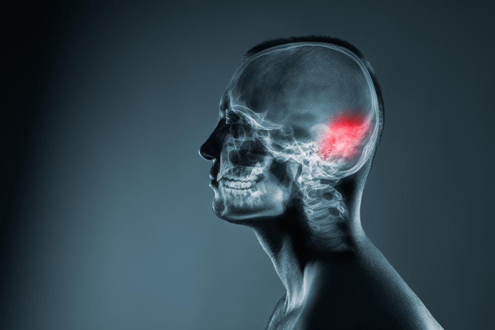Recovering from a Brain Injury from a Car Crash
